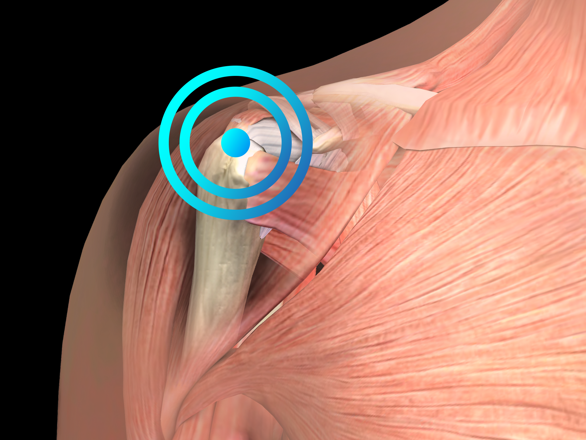 Calcifying tendinitis of the shoulder