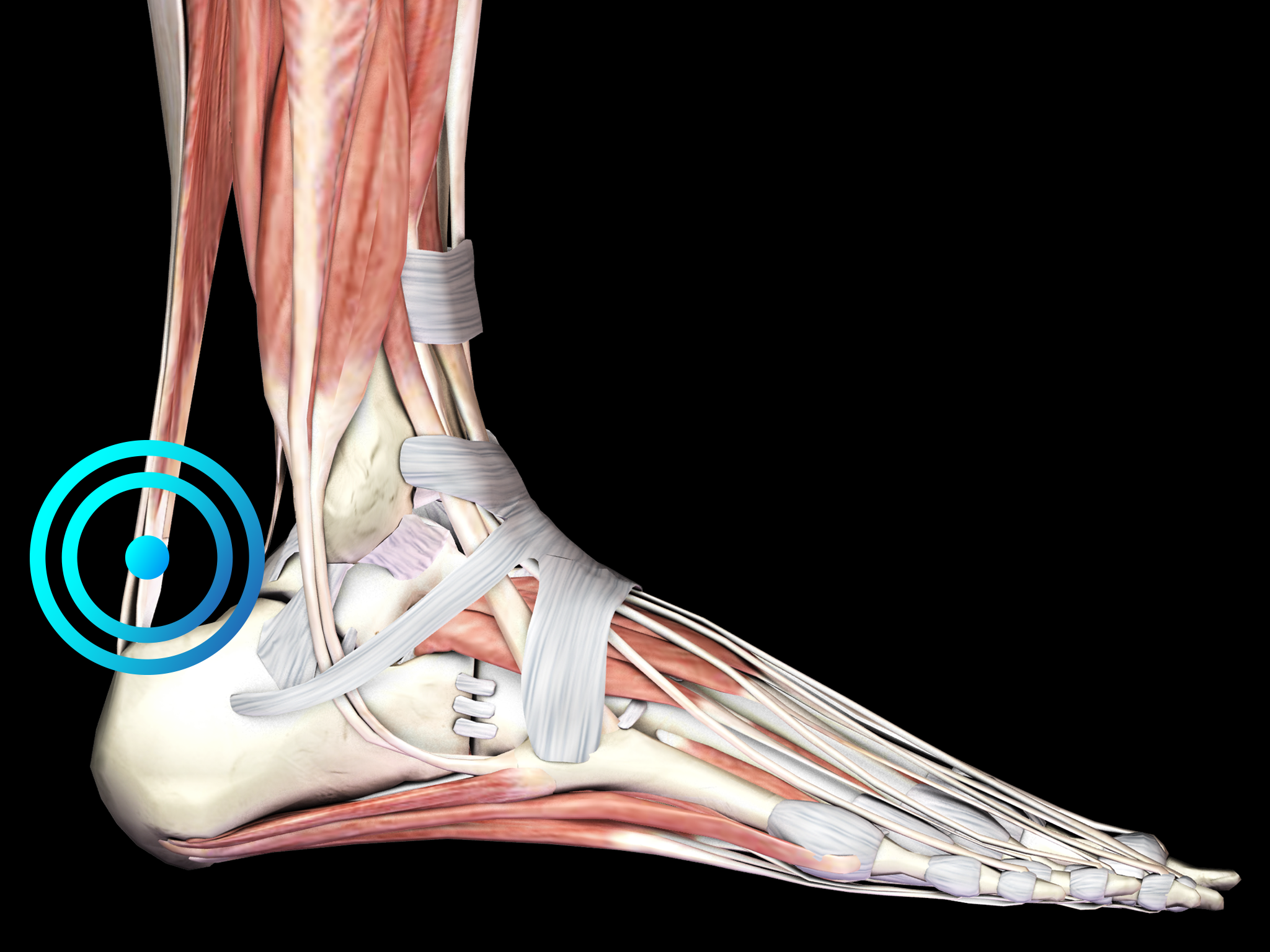 Insertional achilles tendinopathy