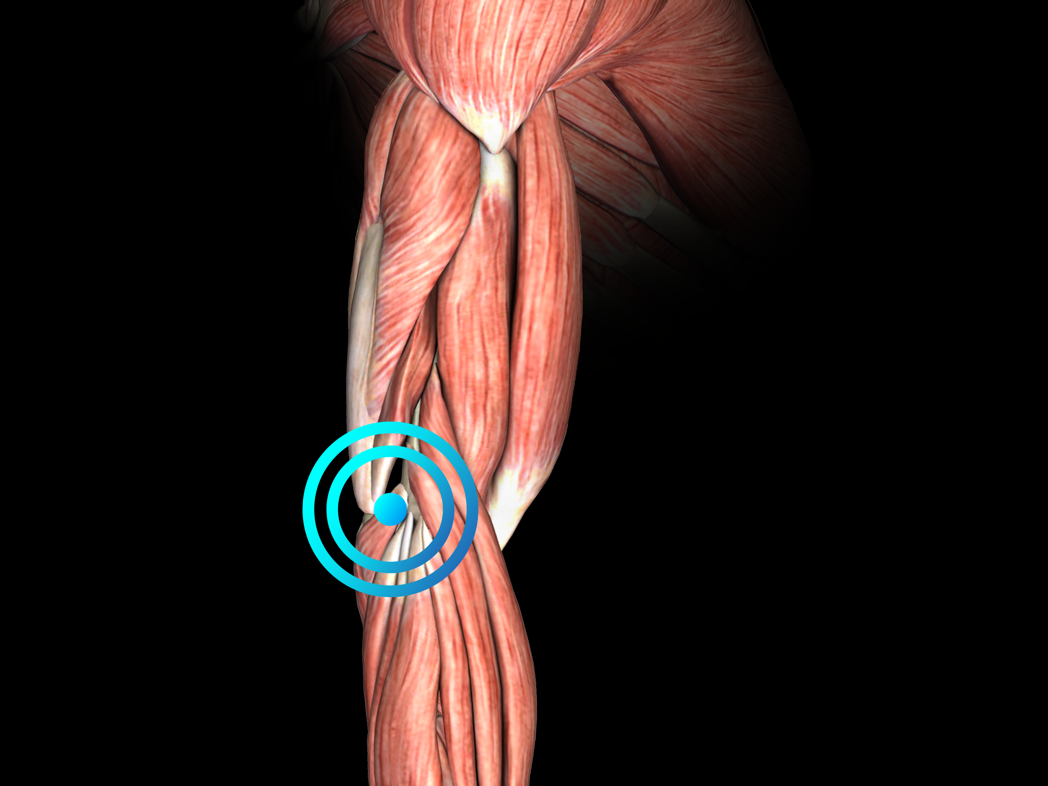 Tennis elbow lateral